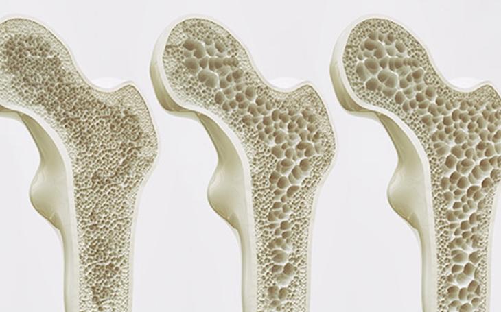 Když každý krok bolí... Osteoartróza postihuje až 40 % šedesátníků!