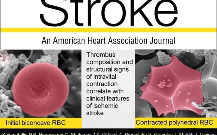 Americký odborný časopis Stroke publikoval výsledky výzkumu mezinárodního týmu, jehož součástí jsou lékaři FN Ostrava