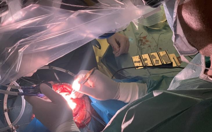 Nemocnice České Budějovice zakoupila jako první v Evropě mikrochirurgické odsávací zařízení Takayama